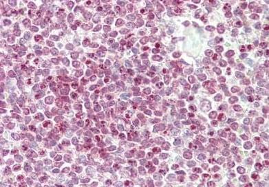 Immunohistochemistry (Formalin/PFA-fixed paraffin-embedded sections) - Anti-CENP-W antibody - N-terminal (ab189957)