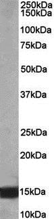 Western blot - Anti-NDUFA7 antibody (ab189979)