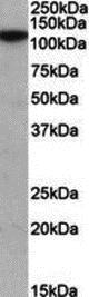 Western blot - Anti-MTHFD1L antibody (ab189981)