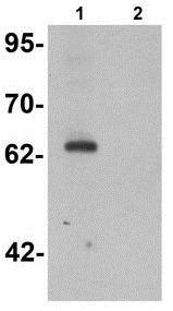 Western blot - Anti-KPNA5 antibody - N-terminal (ab189987)