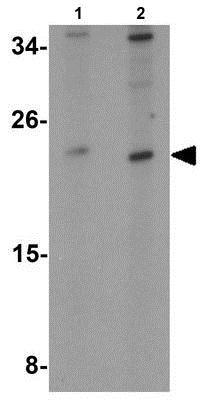 Western blot - Anti-TMEM147 antibody (ab189988)