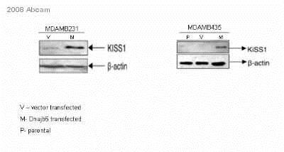 Western blot - Anti-Kisspeptin antibody (ab19028)