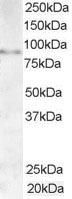Western blot - Anti-AKAP3 antibody (ab19046)