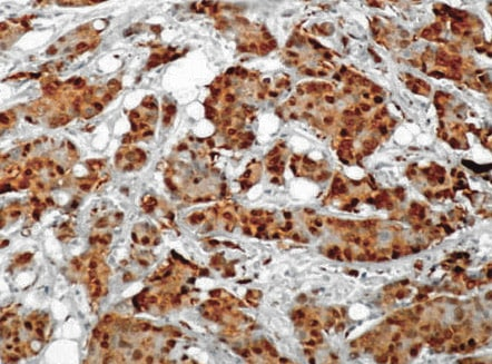 Immunohistochemistry (Formalin/PFA-fixed paraffin-embedded sections) - Anti-Hsc70 antibody [1B5] (ab19136)