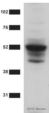 Western blot - Anti-TNF Receptor I antibody (ab19139)