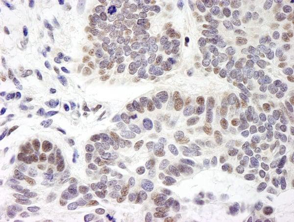 Immunohistochemistry (Formalin/PFA-fixed paraffin-embedded sections) - Anti-ZMYM3 antibody (ab19165)