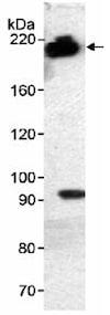 Western blot - Anti-ZMYM3 antibody (ab19165)