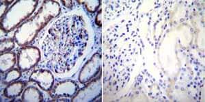 Immunohistochemistry (Formalin/PFA-fixed paraffin-embedded sections) - Anti-CaSR antibody [5C10, ADD] (ab19347)