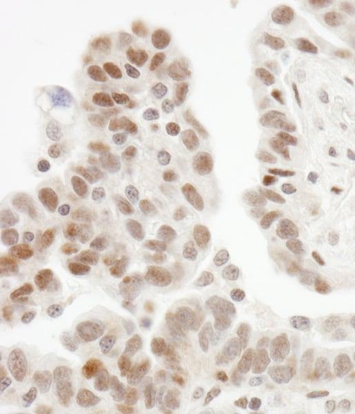 Immunohistochemistry (Formalin/PFA-fixed paraffin-embedded sections) - Anti-ZHX1 antibody (ab19356)