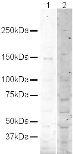Western blot - Mouse Werner's syndrome helicase WRN peptide (ab19370)