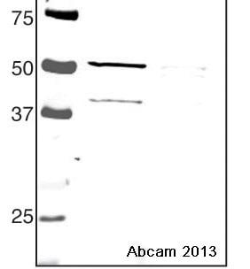Western blot - Anti-SKAP55 antibody (ab19377)