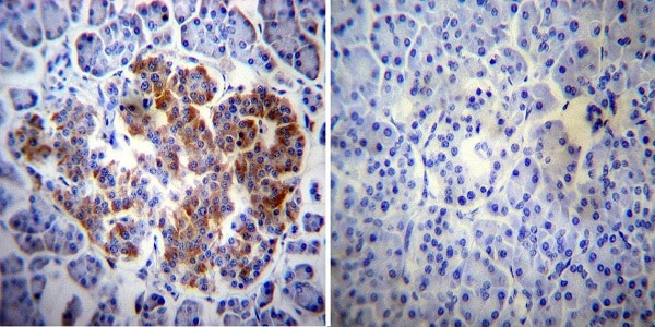 Immunohistochemistry (Formalin/PFA-fixed paraffin-embedded sections) - Anti-ErbB4 / HER4 antibody [HFR-1] (ab19391)
