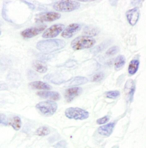 Immunohistochemistry (Formalin/PFA-fixed paraffin-embedded sections) - Anti-CDK11/CDC2L2/CDK11A antibody (ab19393)