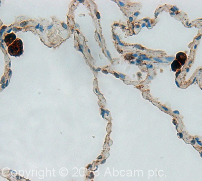 Immunohistochemistry (Formalin/PFA-fixed paraffin-embedded sections) - Anti-Cathepsin D antibody (ab19555)