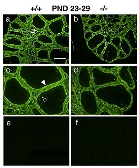 Immunocytochemistry/ Immunofluorescence - Anti-Collagen IV antibody (ab19808)