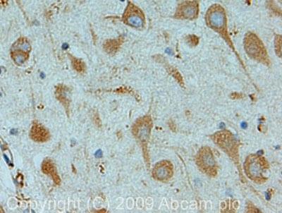 Immunohistochemistry (Formalin/PFA-fixed paraffin-embedded sections) - Anti-OS9 antibody (ab19853)