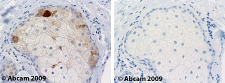 Immunohistochemistry (Formalin/PFA-fixed paraffin-embedded sections) - Anti-SCD1 antibody [CD.E10] (ab19862)