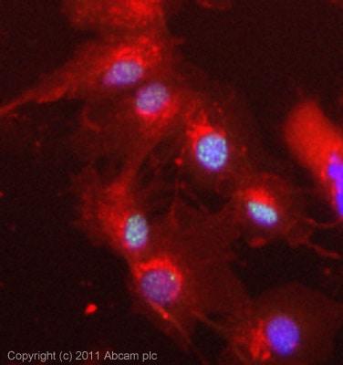 Immunocytochemistry/ Immunofluorescence - Anti-SKI antibody (ab19864)