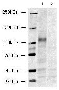 Western blot - Anti-CD133 antibody (ab19898)