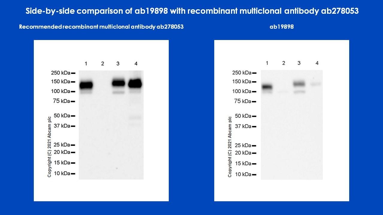 Western blot - Anti-CD133 antibody - Stem Cell Marker (ab19898)