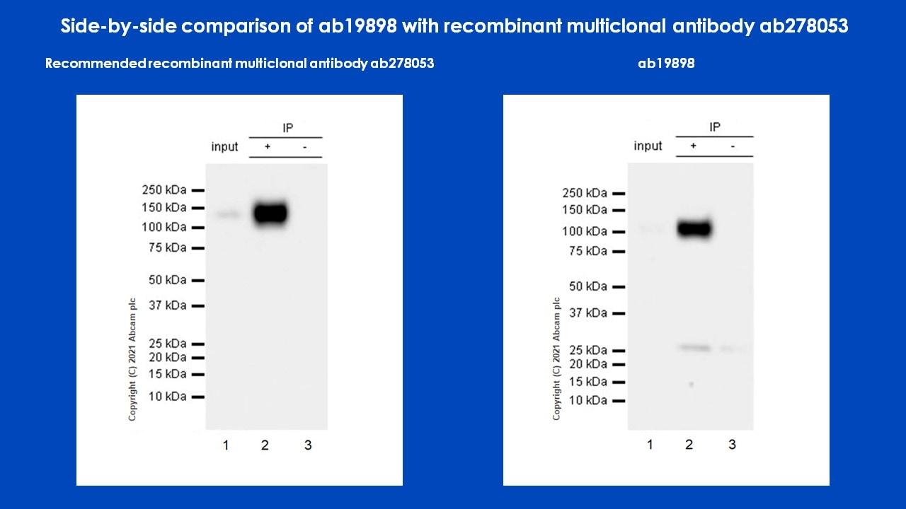 Immunoprecipitation - Anti-CD133 antibody - Stem Cell Marker (ab19898)