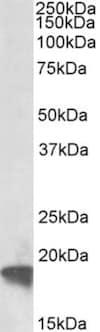 Western blot - Anti-ARF4 antibody (ab190000)