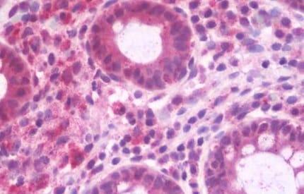 Immunohistochemistry (Formalin/PFA-fixed paraffin-embedded sections) - Anti-RABEP2 antibody (ab190003)