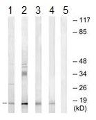 Western blot - Anti-NDUFA4L2 antibody (ab190007)