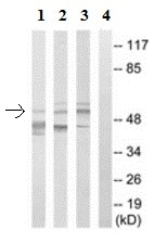 Western blot - Anti-G3BP2 antibody (ab190011)