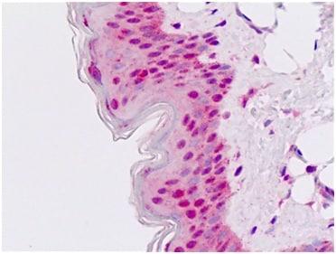 Immunohistochemistry (Formalin/PFA-fixed paraffin-embedded sections) - Anti-Msx2/Hox8 antibody - N-terminal (ab190070)