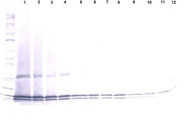 Western blot - Anti-IL-17B antibody (ab190098)