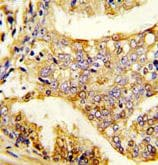 Immunohistochemistry (Formalin/PFA-fixed paraffin-embedded sections) - Anti-Pumilio 2 antibody (ab190104)