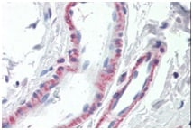 Immunohistochemistry (Formalin/PFA-fixed paraffin-embedded sections) - Anti-THBS3 antibody - C-terminal (ab190117)
