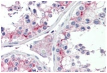 Immunohistochemistry (Formalin/PFA-fixed paraffin-embedded sections) - Anti-HIP14 antibody - C-terminal (ab190121)
