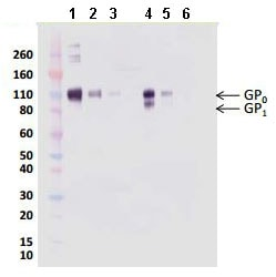 Western blot - Recombinant REBOV GP protein (ab190132)