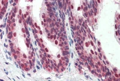 Immunohistochemistry (Formalin/PFA-fixed paraffin-embedded sections) - Anti-PDCD4 antibody (ab190169)