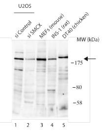 Western blot - Anti-KDM5C / Jarid1C / SMCX antibody - N-terminal (ab190181)