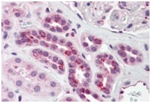 Immunohistochemistry (Formalin/PFA-fixed paraffin-embedded sections) - Anti-PCBP4 antibody - C-terminal (ab190211)