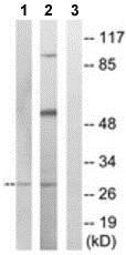 Western blot - Anti-MARCH3 antibody (ab190219)
