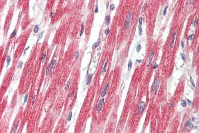 Immunohistochemistry (Formalin/PFA-fixed paraffin-embedded sections) - Anti-PLCL1 antibody (ab190225)