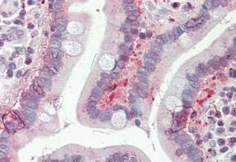 Immunohistochemistry (Formalin/PFA-fixed paraffin-embedded sections) - Anti-SLC25A19 antibody - C-terminal (ab190228)