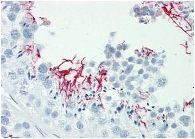 Immunohistochemistry (Formalin/PFA-fixed paraffin-embedded sections) - Anti-GAK antibody (ab190231)