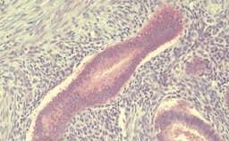 Immunohistochemistry (Formalin/PFA-fixed paraffin-embedded sections) - Anti-Translin/TSN antibody - C-terminal (ab190241)