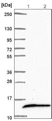 Western blot - Anti-COX16 antibody (ab190251)