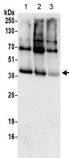 Western blot - Anti-SPP antibody - C-terminal (ab190253)