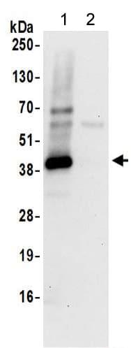 Immunoprecipitation - Anti-SPP antibody - C-terminal (ab190253)