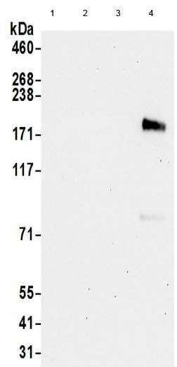 Western blot - Anti-ErbB 3 antibody - C-terminal (ab190269)