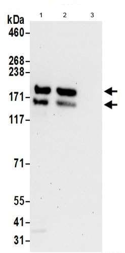 Immunoprecipitation - Anti-Kinectin 1 antibody (ab190271)