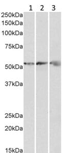 Western blot - Anti-ATPB antibody (ab190295)