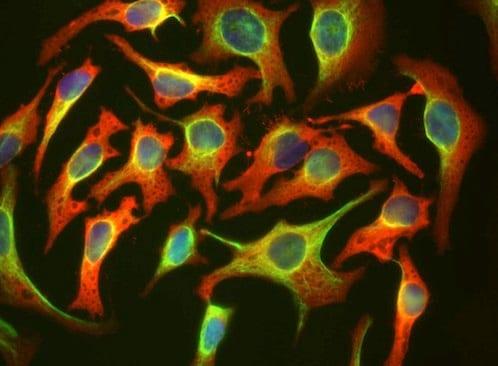 Immunocytochemistry/ Immunofluorescence - Anti-Hsp27 antibody [6H11] (ab190314)